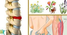 Back sciatica best for sciatica pain,how to deal with sciatica pain pain relief for sciatic nerve pain in the leg,pain relief for sciatica in buttocks physiotherapy for sciatica relief. Chronic Sciatica, Sciatica Pain, Sciatic Nerve, Nerve Pain, Bulging Disc In Neck, Herniated Disc Lower Back, Lower Back Problems, Back Pain Relief, Back Muscles
