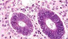 celulas reais microscopia optica - Pesquisa Google