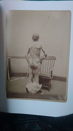 Same man from behind This is a book I read about disfigurements, diseases and mutations in people. It is called The Mutter Museum Historical Medical Photographs. I've just this as inspiration to draw mutations in people for my concept art. Sideshow Freaks, Medical Photos, Human Oddities, Creepy Photos, Vintage Medical, This Is A Book, Spooky Scary, Weird And Wonderful, Casket