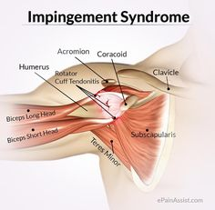 Impingement Syndrome or Rotator Cuff Tendinitis: Know its Causes Symptoms Diagnosis Treatment Exercise Home Remedies. Swimmer's Shoulder Pitcher's Shoulder Tennis Shoulder Are The Other Names of Impingement Syndrome. Shoulder Anatomy, Rotator Cuff Exercises, Tendinitis, Sports Therapy, Sports Physical Therapy, Muscle Anatomy, Massage Techniques, Shoulder Workout, Shoulder Gym