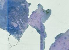 Toxoplasma - Oliver Thein