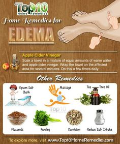 Remedies For Water Retention 10 Natural Home Remedies for Edema (Swollen Feet and Ankles) natural health tips, natural health remedies Natural Health Tips, Natural Health Remedies, Natural Cures, Natural Diuretic, Natural Healing, Natural Foods, Natural Beauty, Home Remedies For Diabetes, Top 10 Home Remedies