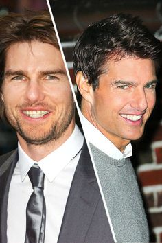 When you have one of the most famous smiles in the world, how do you improve it without people noticing? Tom Cruise solved this impossible mission in 2002 by wearing (mostly) invisible braces with ceramic brackets. Having just turned 40, Cruise gave his teeth a tune-up for a few months, and then the braces came off before the paparazzi got in his face.