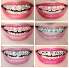 I want braces ! Braces Bands, Braces Tips, Dental Braces, Teeth Braces, Dental Care, Pink Braces, Braces Retainer, Cute Braces Colors, Ceramic Braces