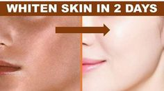 Fair skin in just 2 days | 100% natural
