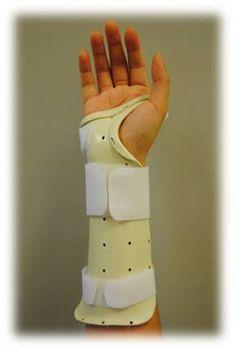 Dinosaur splint! Dynamic wrist flexion I have never made ...