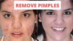 How to Remove Pimples and Acne Overnight Naturally & Faster at Home | Be...