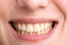 El vinagre de manzana, una receta tradicional adoptada por muchos practicantes de medicina alternativa, contiene ácido acético. Su contenido de ácido acético puede tener efectos irritantes sobre la piel, las membranas mucosas en la boca y la garganta, y puede afectar el esmalte dental.