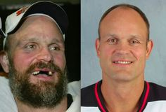 26 Hockey players with and without their beards