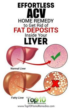 Effortless ACV #Home #Remedy to Get Rid of Fat Deposits Inside Your Liver