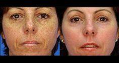 Voici un remède naturel et facile à préparer pour éclaircir la peau et réduire les tâches brunes