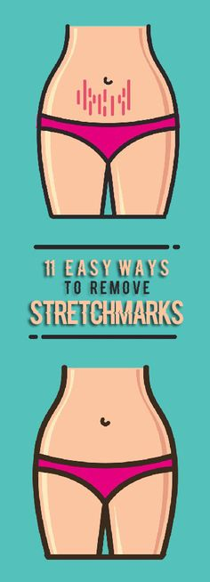 How to Remove Stretch Marks Easily