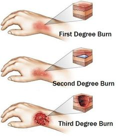 Types of Skin Burns