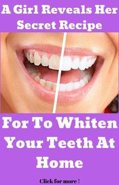 Natural Teeth Whitening Remedies A Girl Reveals Her Secret Recipe For To Whiten Your Teeth At Home (Video). Teeth Whitening Remedies, Natural Teeth Whitening, Dental Hygiene, Dental Care, Receding Gums, Dental Surgery, Dental Implants, Best Oral, Secret Recipe
