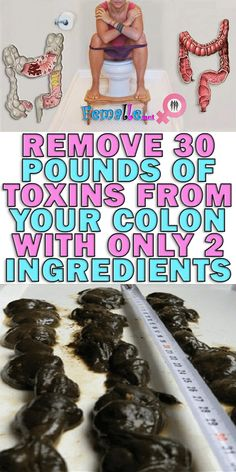Remove 30 Pounds of Toxins From Your Colon With Only 2 Ingredients