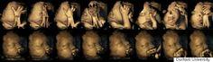 妊娠中にタバコを吸うと、胎内の赤ちゃんの動きが変わる(研究結果)