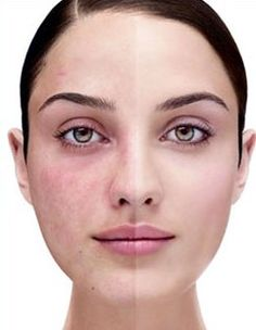 Micro Needling is Not Recommended with Rosacea