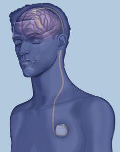 Serenity System Tinnitus Treatment Vagus Nerve