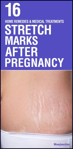 Here are 16 simple and effective home remedies along with medical treatments which will help reduce stretch marks after pregnancy. Read on!