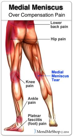 Torn meniscus info fitness healthy living pinterest torn over compensation pain can result in a severe setback when recovering from a torn medial meniscus ccuart Images