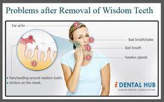 Problems after Removal of Wisdom Teeth