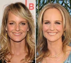 """In her """"before"""" picture, Helen Hunt's eyelids look heavy. Removing excess eyelid skin and elevating the brows and outer corners could create more open-looking eyes."""