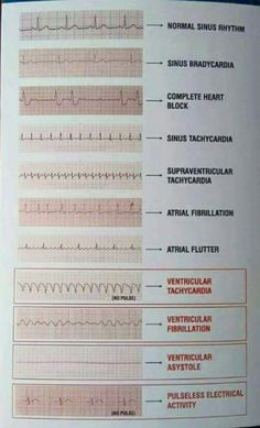 Tele-Strip-EKG-Messwerte Tele-Strip ECG readings How to cleanse your whole body in a natural way Continue reading Waters For Clear Skin – Health – # forHere you can find our effective diet plan for de Cardiac Nursing, Nursing Mnemonics, Surgical Nursing, Surgical Tech, Nursing School Notes, Nursing Schools, Rn School, Medical School, Critical Care Nursing