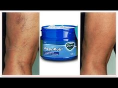 This is a surprising use of Vicks VapoRub for Varicose Veins. Vicks VapoRub is very effective in getting rid of varicose veins. This treatment is easy to mak. Varicose Vein Removal, Varicose Vein Remedy, Varicose Veins Treatment, Spider Vein Treatment, Creme Anti Rides, Creme Anti Age, Get Rid Of Spider Veins, Rides Front, Skin Care
