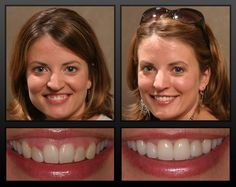 osmetic Dentistry focuses on improving the appearance of a person's teeth