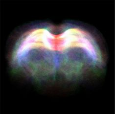 Diffusion tensor imaging, an MRI-based neuroimaging technique, revealing the fibre tracts through the corpus callosum in a rodent brain. The colours represent the different directions that the tracts are travelling through the brain.