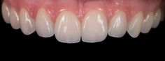 Dentcof - Case 31 - Luciana