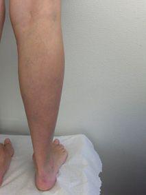 tyngdkänsla i benen