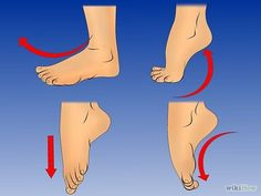 How to get rid of bunions #FootPain