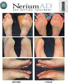 nerium ad | ... Nerium AD – some in as little as one week! Check out this photo of