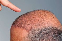 El bicarbonato de sodio es un ingrediente que se puede aprovechar en la cocina, como agente de limpieza, como medicamento y como un producto para el cuidado del cabello o de la piel.\r\n\r\n[ad]\r\nSi lo que buscas es ayuda con tu cuero cabelludo, debes reemplazar tu champú por bicarbonato de sodio, pues este no sólo mejorará la calidad de tu cabello, sino que limpiará todos los rastros químicos de los productos que has usado para mejorar tu pelo.\r\n\r\n\r\n\r\nDado que el champú casero de…