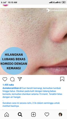 Tips Kecantikan Alami _ Tips Kecantikan - DIY Schoonheid Recepten 2019 Healthy Skin Care, Healthy Beauty, Health And Beauty Tips, Face Skin Care, Diy Skin Care, Skin Tips, Skin Care Tips, Skincare For Oily Skin, Beauty Skin
