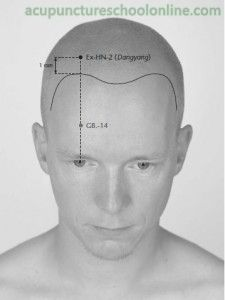 Ex Hn 2 Above The Yang Dangyang Acupuncture Points 1 Acupuncture Points Acupuncture Accupuncture