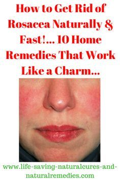 """Discover the little-known (but extremely powerful) natural remedy for rosacea, along with other cutting-edge rosacea treatments & home remedies in this """"must read"""" article. Home Remedies For Face, Natural Remedies For Rosacea, Rosacea Remedies, Dry Skin Remedies, Natural Health Remedies, Natural Cures, Natural Healing, Healing"""