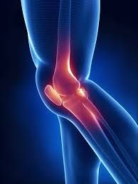 Swelling, bleeding, or weakness of surrounding joint tissues can be detected by MRIs.