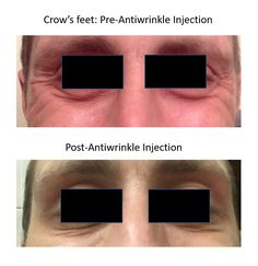 Anti-wrinkle injections - Crow's feet