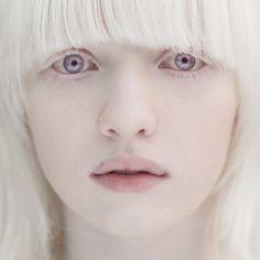 Альбинос