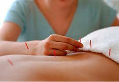 #Pymesunidas Tratamiento de acupuntura con agujas en la espalda, mejora tanto fisica como psicologiamente, consultame 616772018