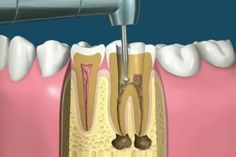 Root canal treatment is a dental procedure which includes cleaning and shaping of the root canal system and obturating it with a root filling material. Dental Hygienist Jobs, Dental Hygiene School, Dental Life, Dental Art, Dental Health, Oral Health, Dental Implant Procedure, Dental Surgery, Dental Procedures