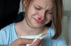 Ruhe bewahren und vorbeugen: Erste Hilfe bei Nasenbluten #News #Fitness