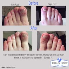 11 Best Before After Photos Images Before After Photo Laser