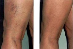 If your varicose veins and spider leg veins are causing you discomfort, you may need to consult for the laser treatment in Chicago. Simple laser treatment, sclerotherapy & many more… Varicose Vein Remedy, Varicose Veins Treatment, Varicose Vein Removal, Spider Vein Treatment, Nail Treatment, Natural Treatments, Health And Fitness, Natural Remedies, Home Remedies