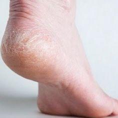 DIY Cracked Heels Remedies ~ Home Remedies For Cracked Heels - Natural Treatments & Cure For Cracked Heels Homemade Beauty, Diy Beauty, Beauty Hacks, Beauty Spa, Dry Skin Remedies, Health Remedies, Natural Home Remedies, Natural Healing, Natural Oil