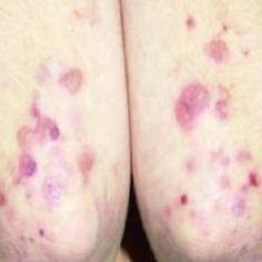 27 Síntomas reales de fibromialgia que no están solo en tu cabeza – STAY AWARE WITH US Print Tattoos, Medicine, Dress, Gluten Free Foods, Diets, Birthday Party Foods, Sensitive People