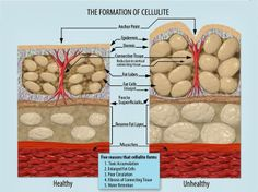 A good explanation of cellulite plus reasons why we have it.