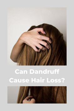 Can Dandruff Cause Hair Loss?